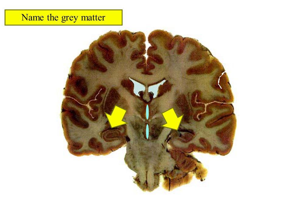 Name the grey matter
