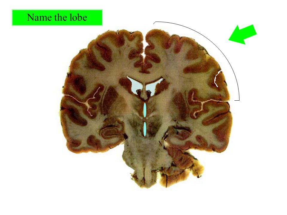 Name the lobe