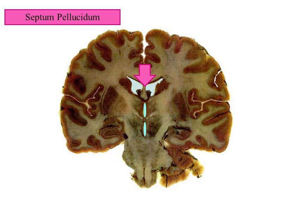 Septum Pellucidum