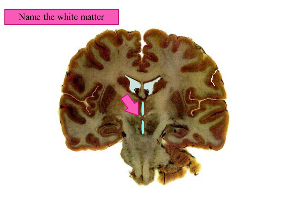 Name the white matter