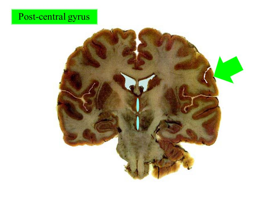Post-central gyrus