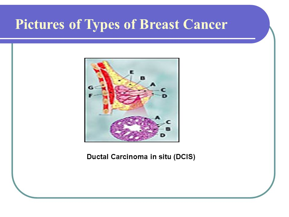 Pictures of Types of Breast Cancer