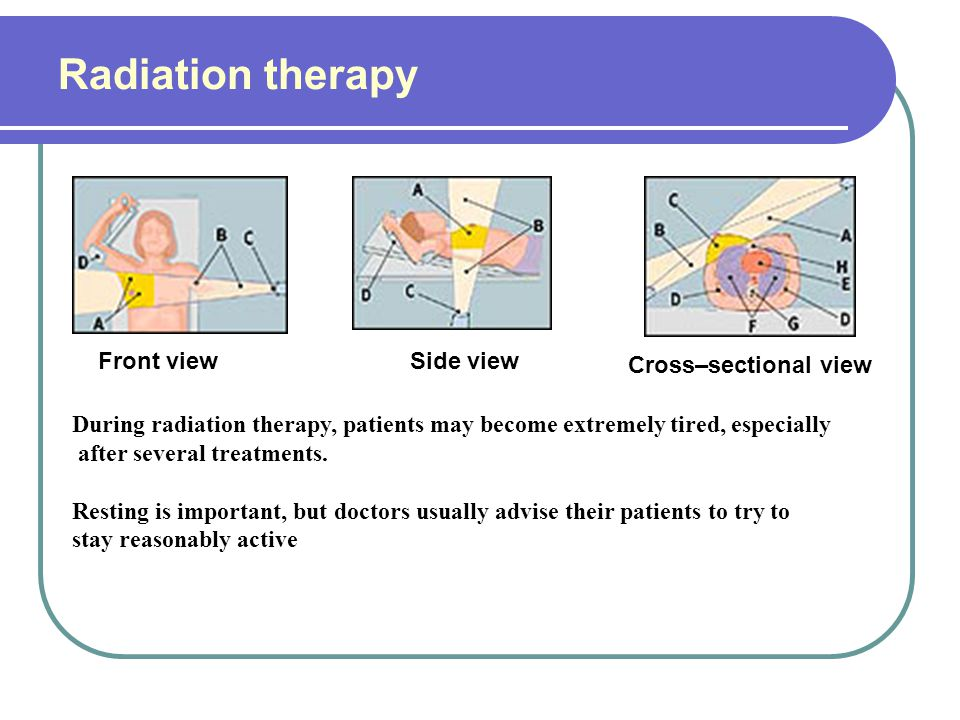 Radiation therapy Front view Side view Cross–sectional view