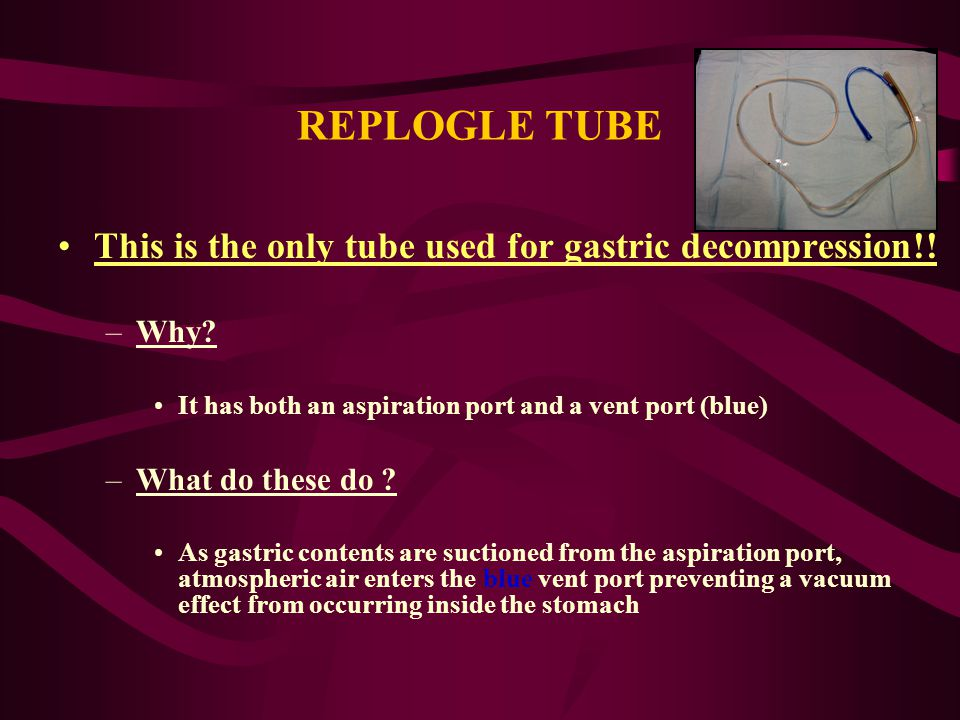 REPLOGLE TUBE This is the only tube used for gastric decompression!!