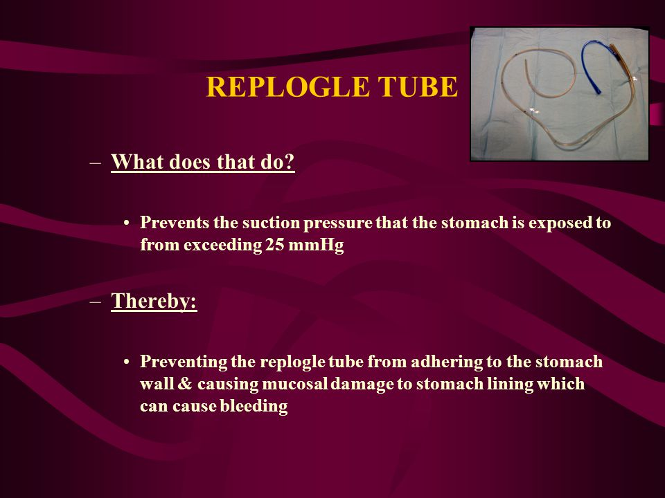 REPLOGLE TUBE What does that do Thereby: