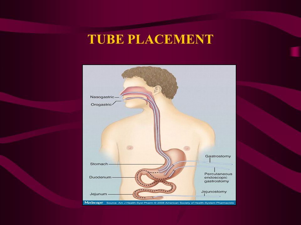TUBE PLACEMENT