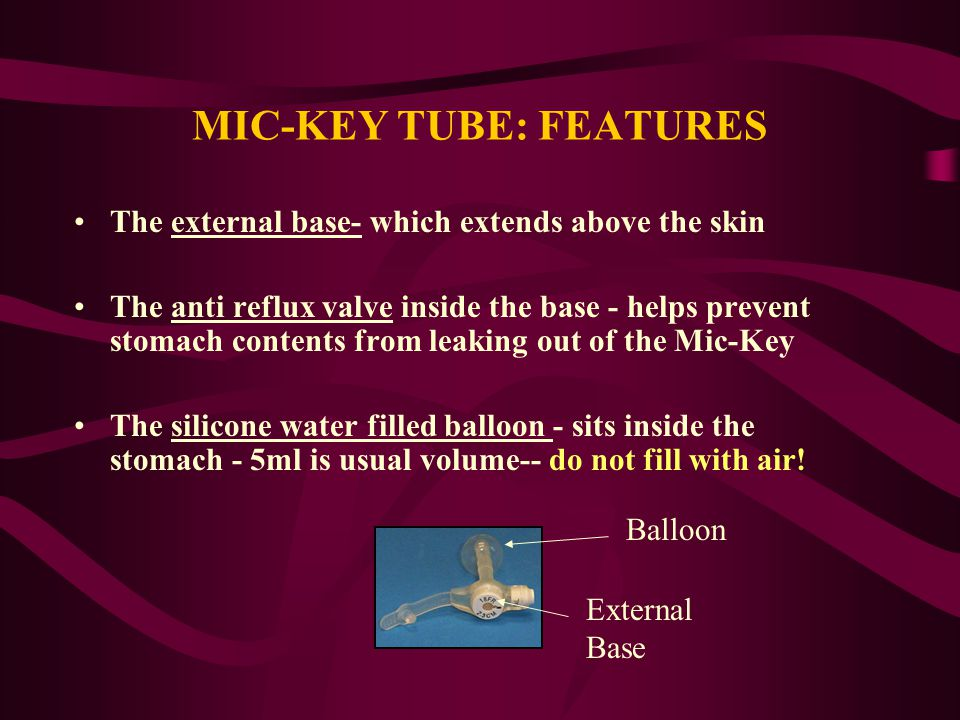 MIC-KEY TUBE: FEATURES