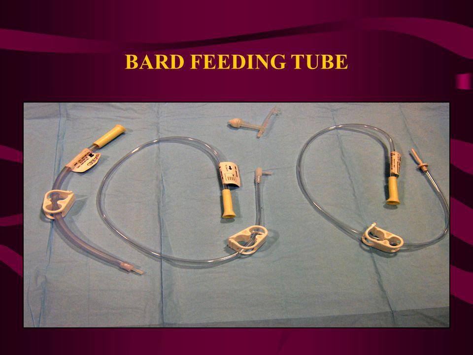 BARD FEEDING TUBE