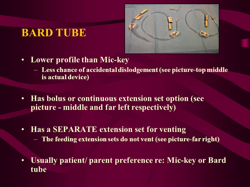 BARD TUBE Lower profile than Mic-key