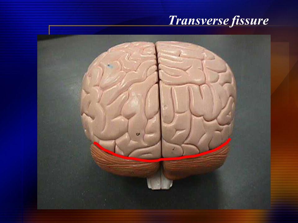 Transverse fissure