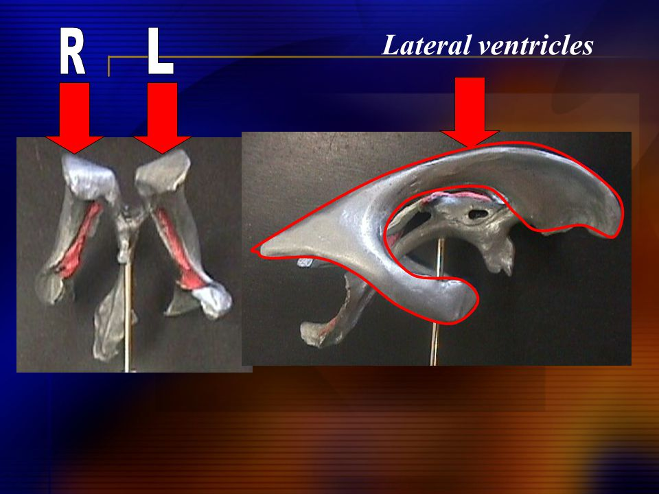 Lateral ventricles R L