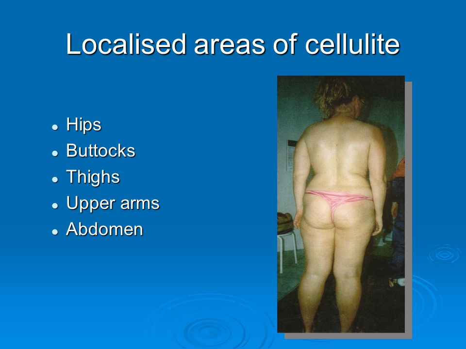 Localised areas of cellulite