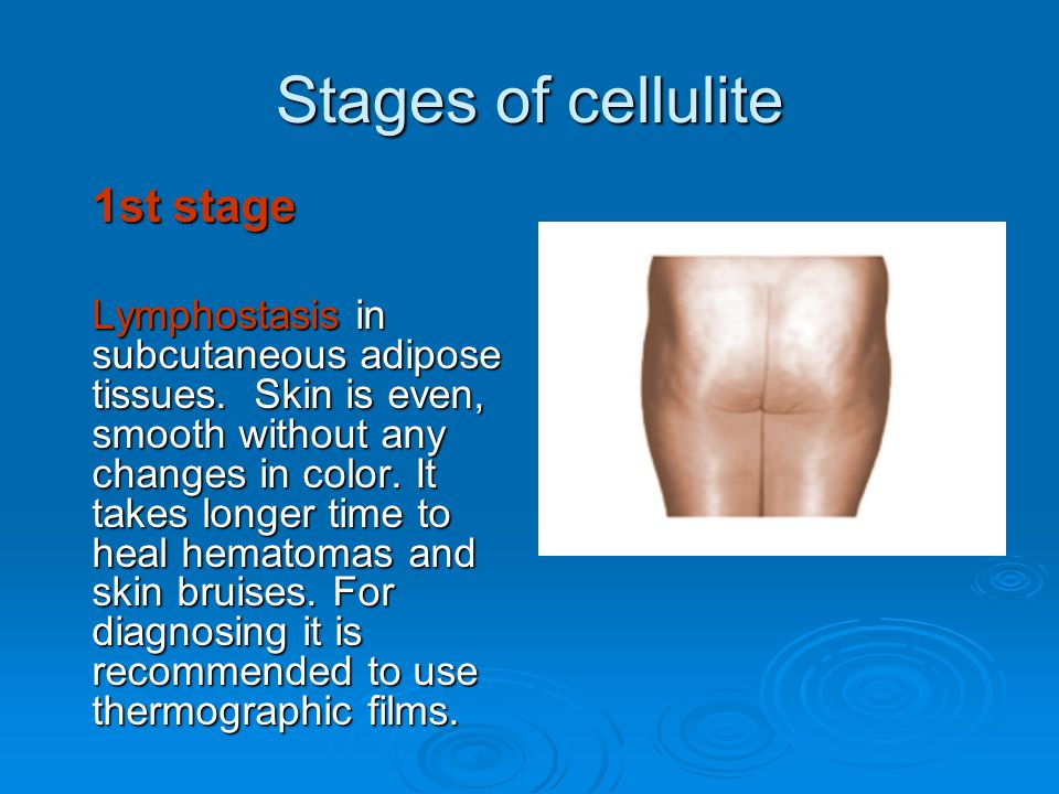 Stages of cellulite 1st stage