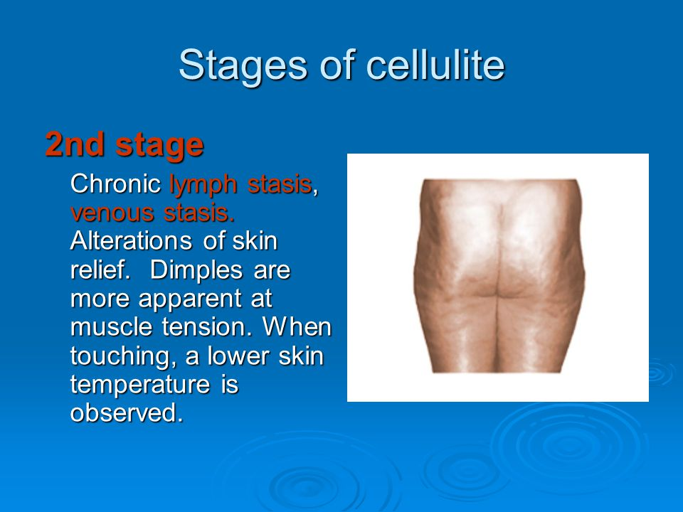 Stages of cellulite 2nd stage