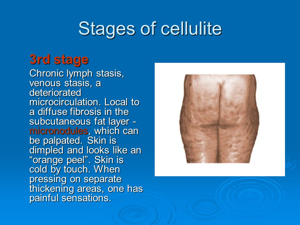 Stages of cellulite 3rd stage