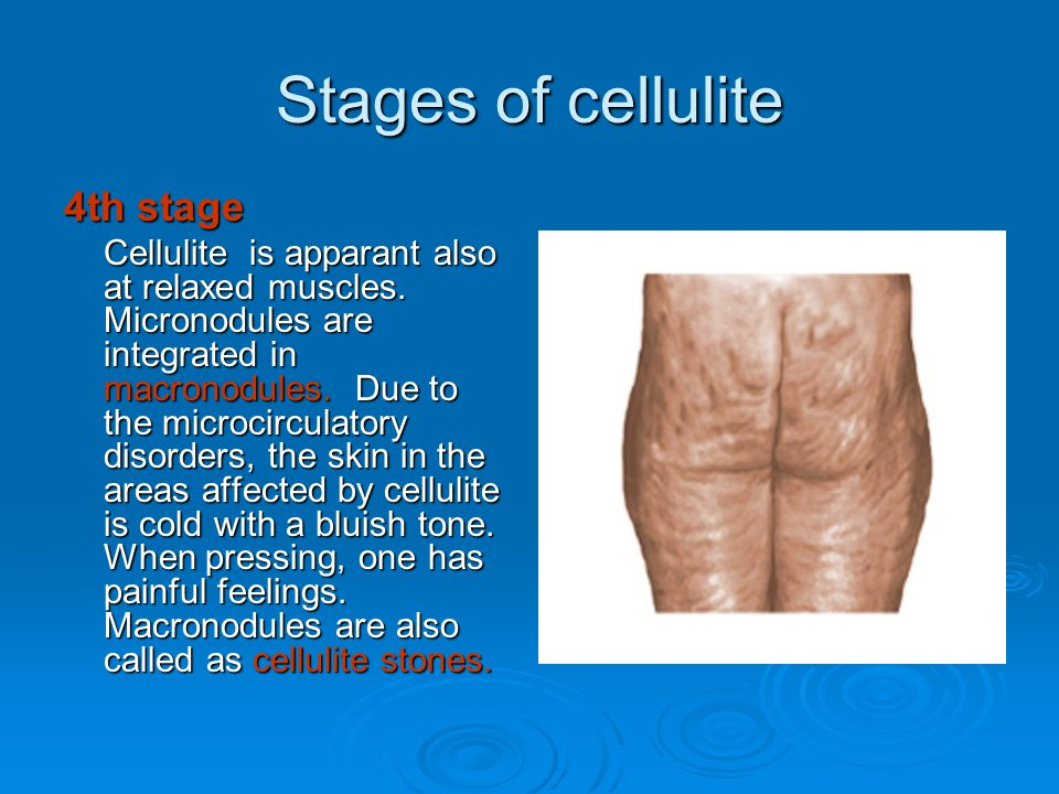 Stages of cellulite 4th stage