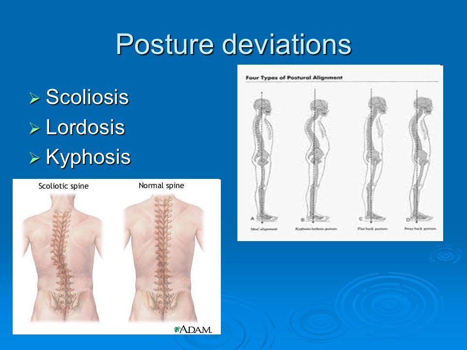 Posture deviations Scoliosis Lordosis Kyphosis