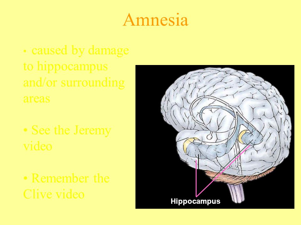 Amnesia See the Jeremy video Remember the Clive video