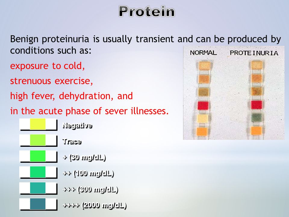 Protein Benign proteinuria is usually transient and can be produced by conditions such as: exposure to cold,