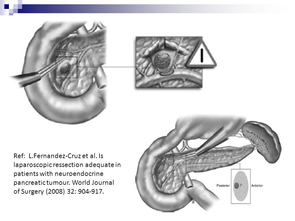 Ref: L. Fernandez-Cruz et al