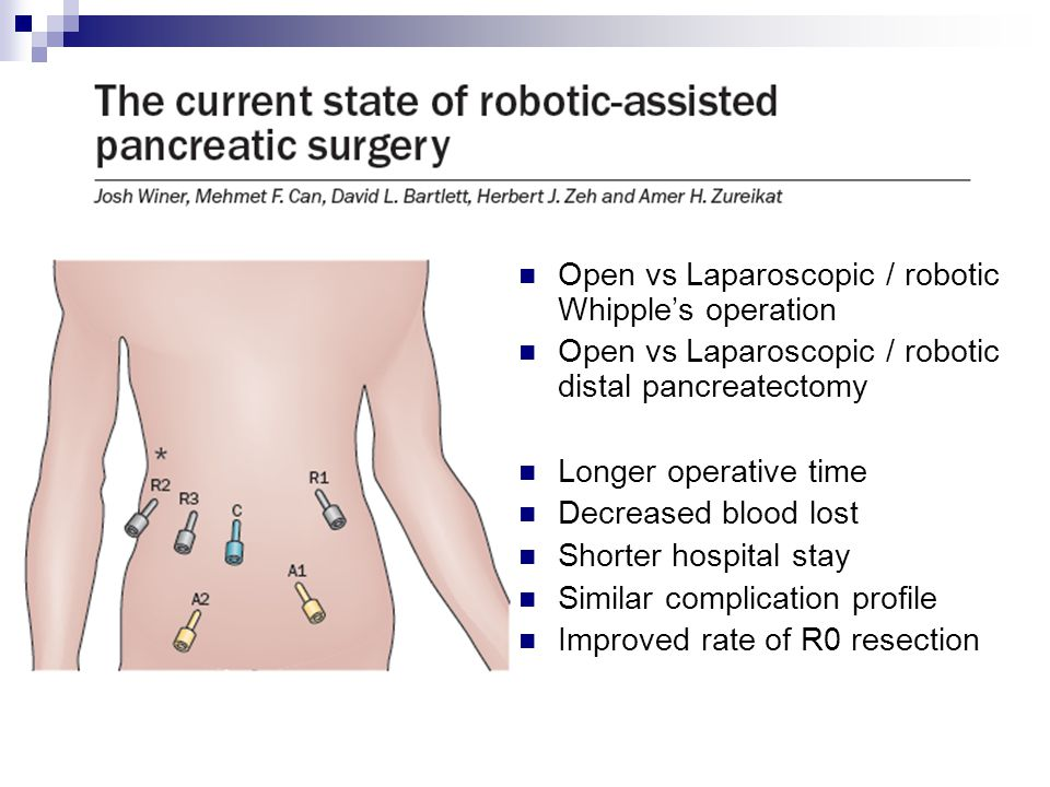 Open vs Laparoscopic / robotic Whipple's operation