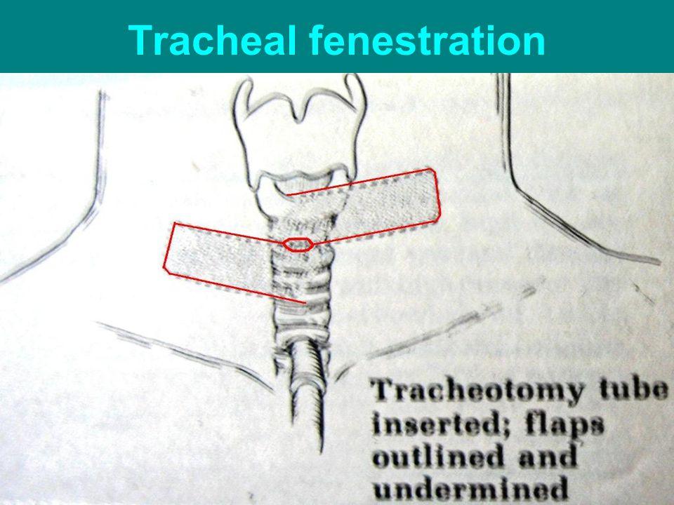 Tracheal fenestration