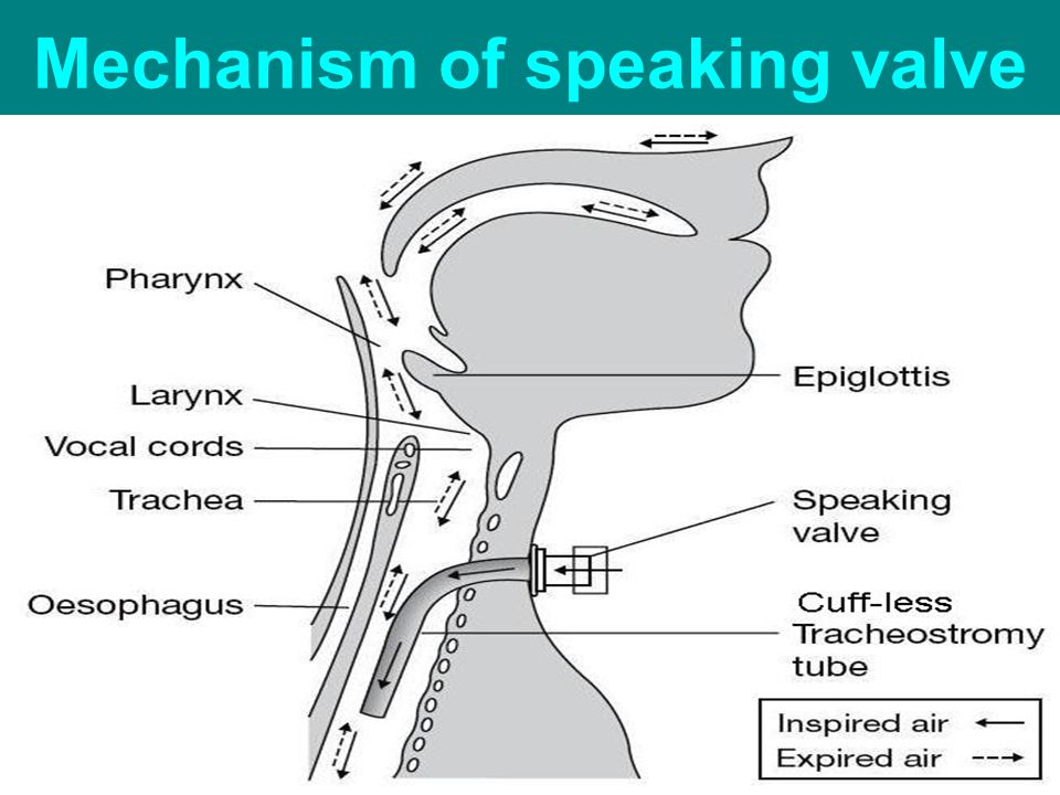 Mechanism of speaking valve