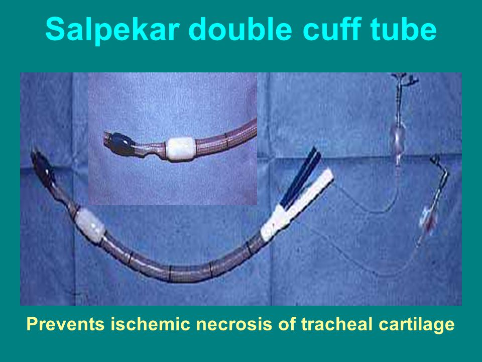 Salpekar double cuff tube