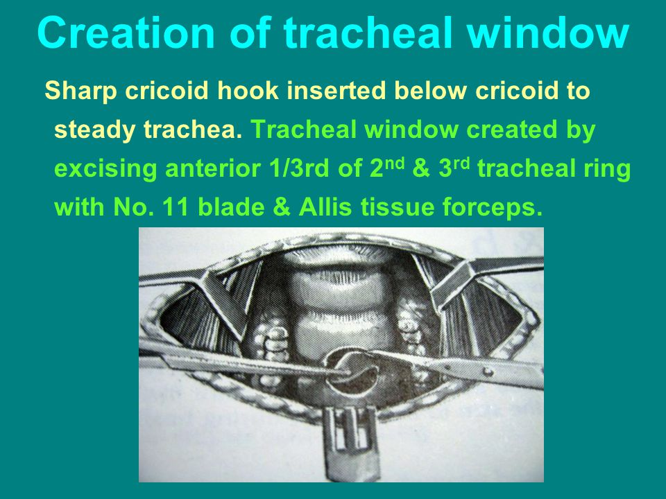 Creation of tracheal window