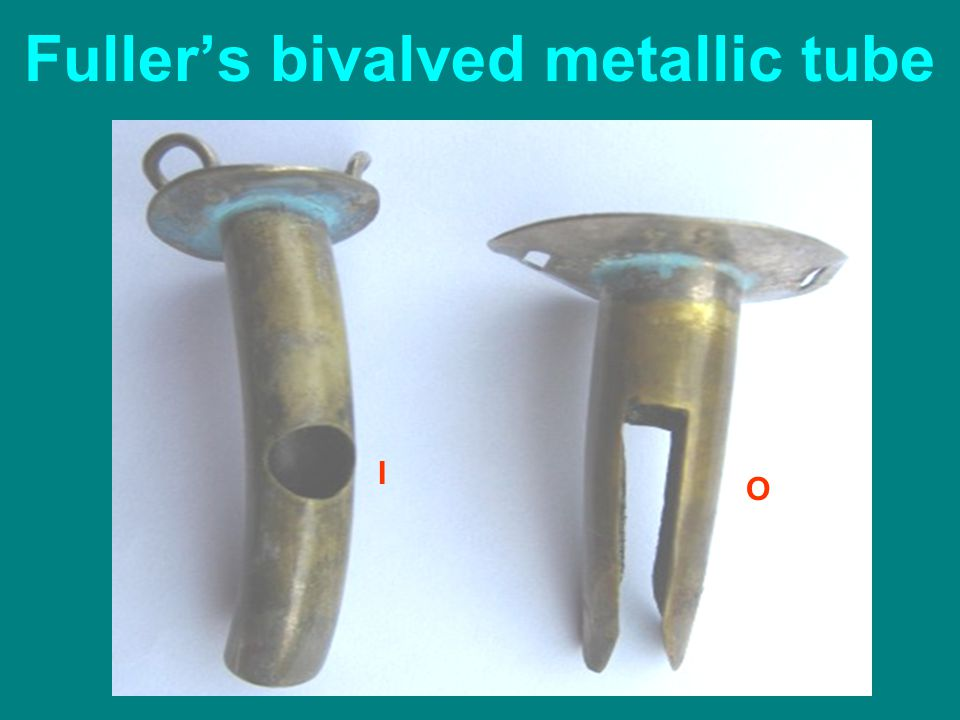 Fuller's bivalved metallic tube