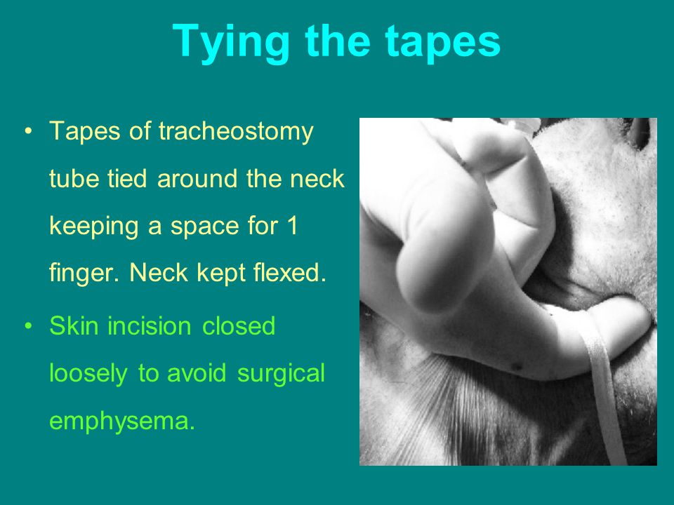 Tying the tapes Tapes of tracheostomy tube tied around the neck keeping a space for 1 finger. Neck kept flexed.