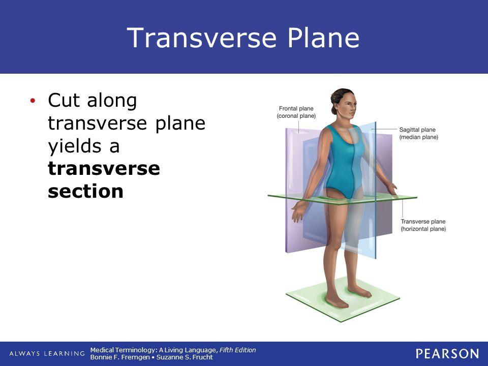 Transverse Plane Cut along transverse plane yields a transverse section