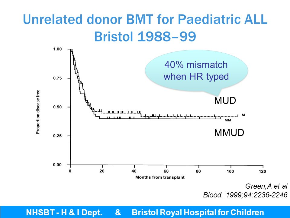 Unrelated donor BMT for Paediatric ALL Bristol 1988–99