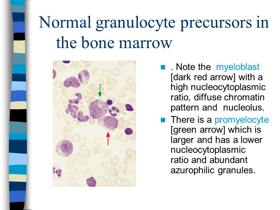 Normal granulocyte precursors in the bone marrow