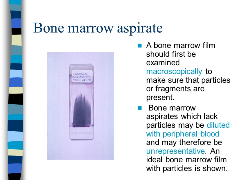 Bone marrow aspirate A bone marrow film should first be examined macroscopically to make sure that particles or fragments are present.
