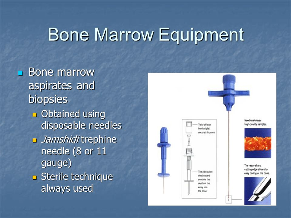 Bone Marrow Equipment Bone marrow aspirates and biopsies