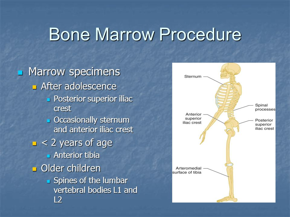 Bone Marrow Procedure Marrow specimens After adolescence