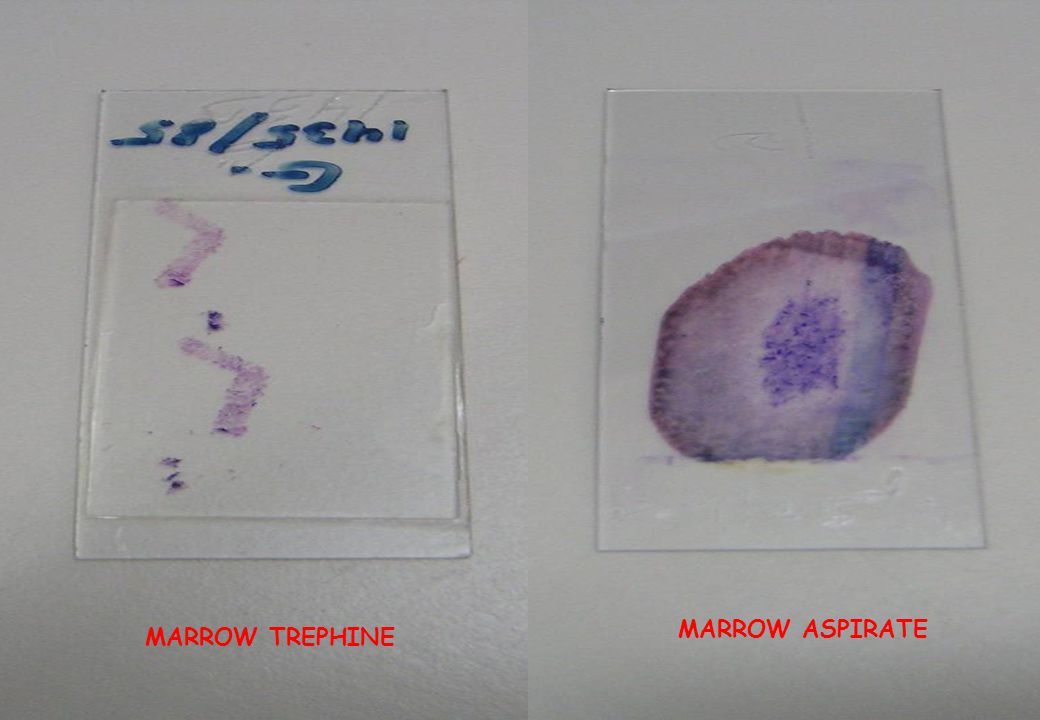 BONE MARROW Haematopoietic (Red Marrow) all bones at birth
