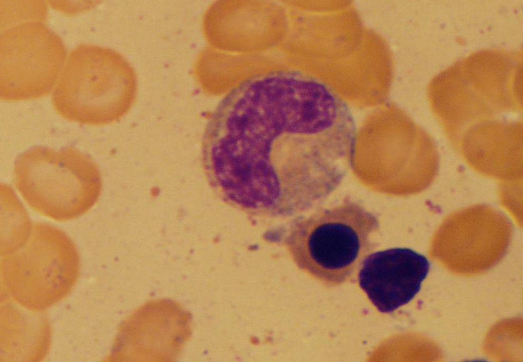 MYELOPOIESIS promyelocyte metamyelocyte polymorph myelocyte myeloblast