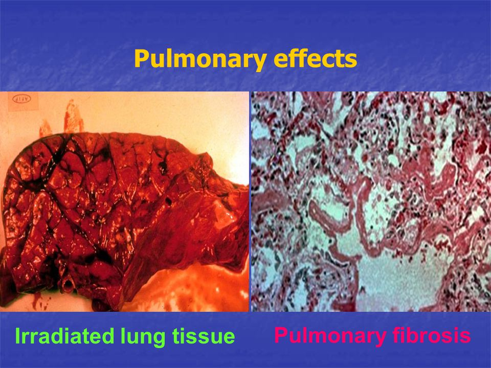 Pulmonary effects Irradiated lung tissue Pulmonary fibrosis