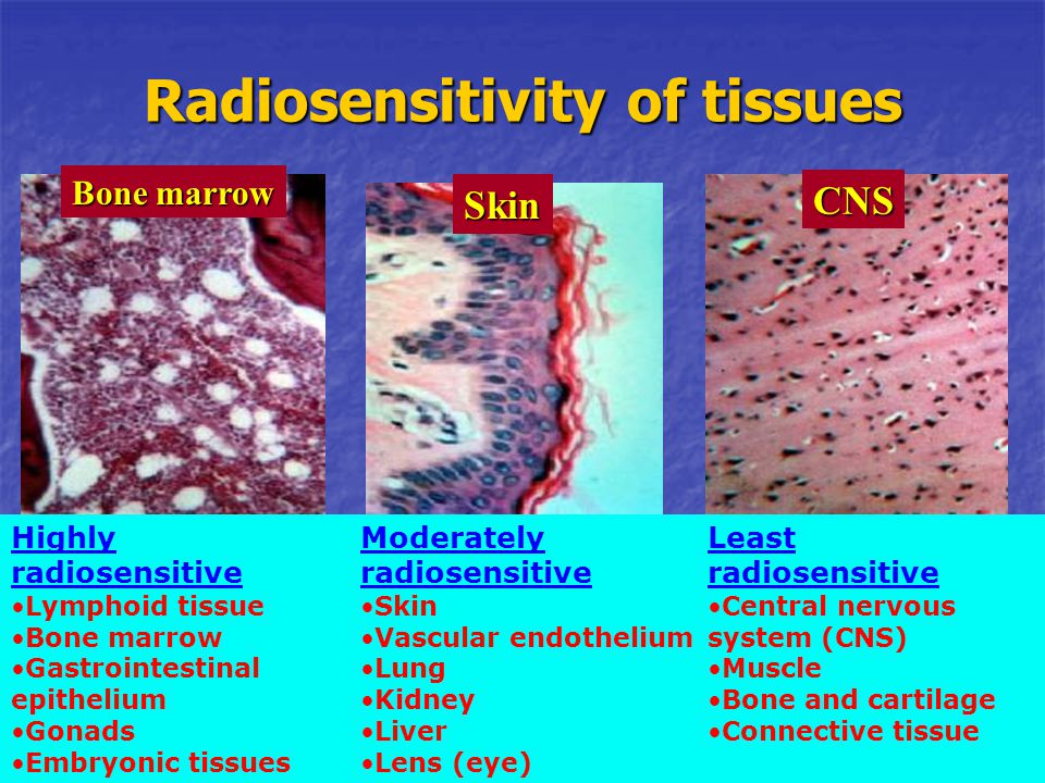 Radiosensitivity of tissues