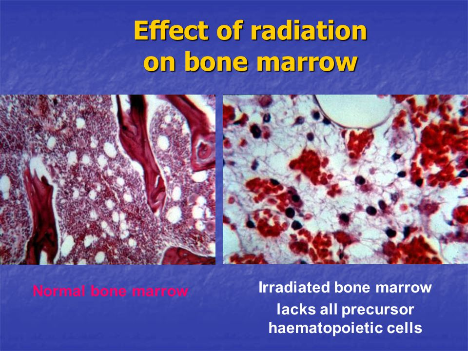 Effect of radiation on bone marrow
