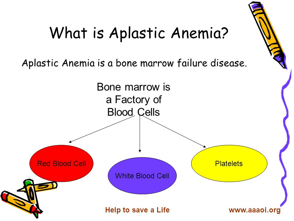 What is Aplastic Anemia