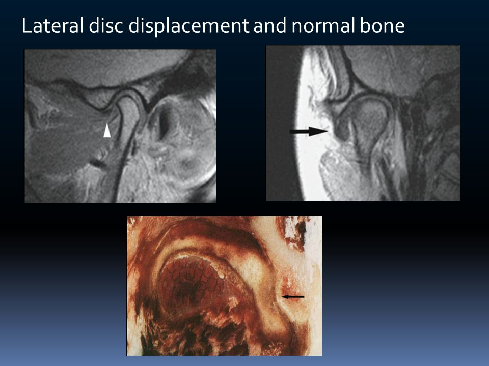 Lateral disc displacement and normal bone
