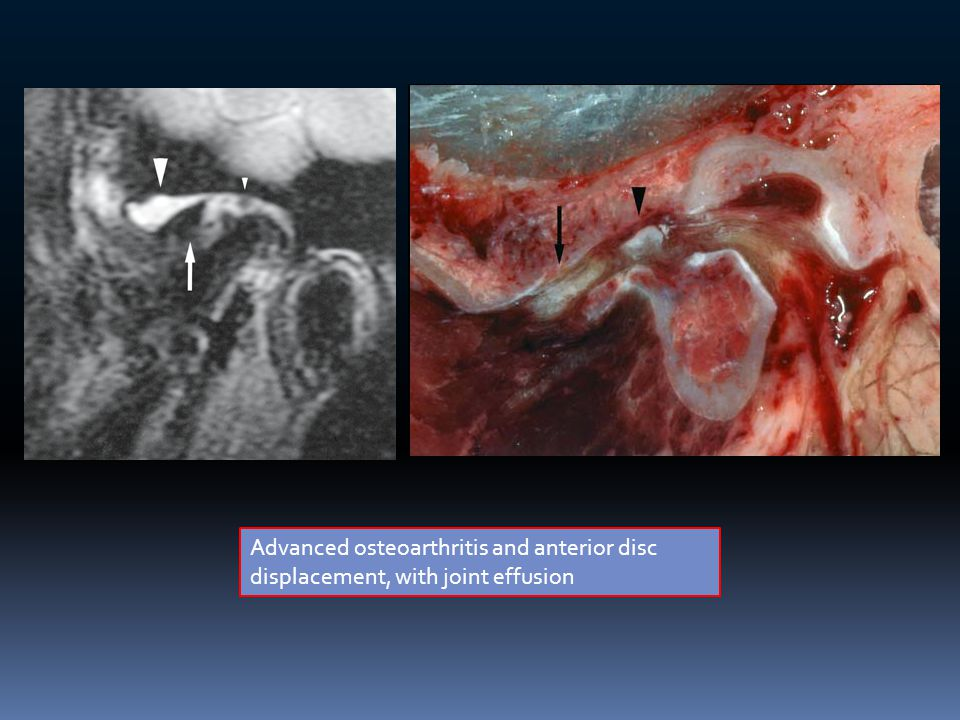Advanced osteoarthritis and anterior disc displacement, with joint effusion