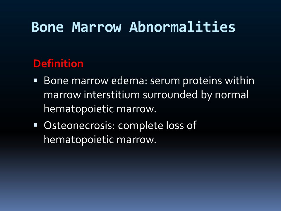 Bone Marrow Abnormalities