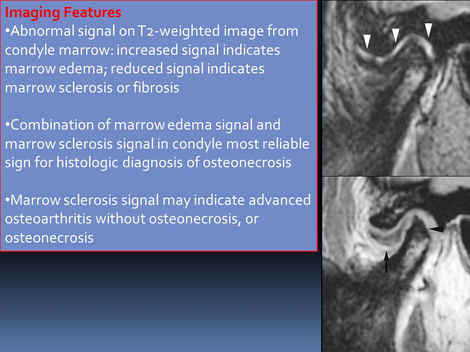 Imaging Features Abnormal signal on T2-weighted image from.