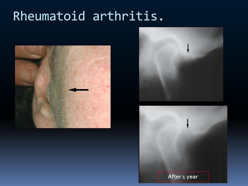 Rheumatoid arthritis. After 1 year