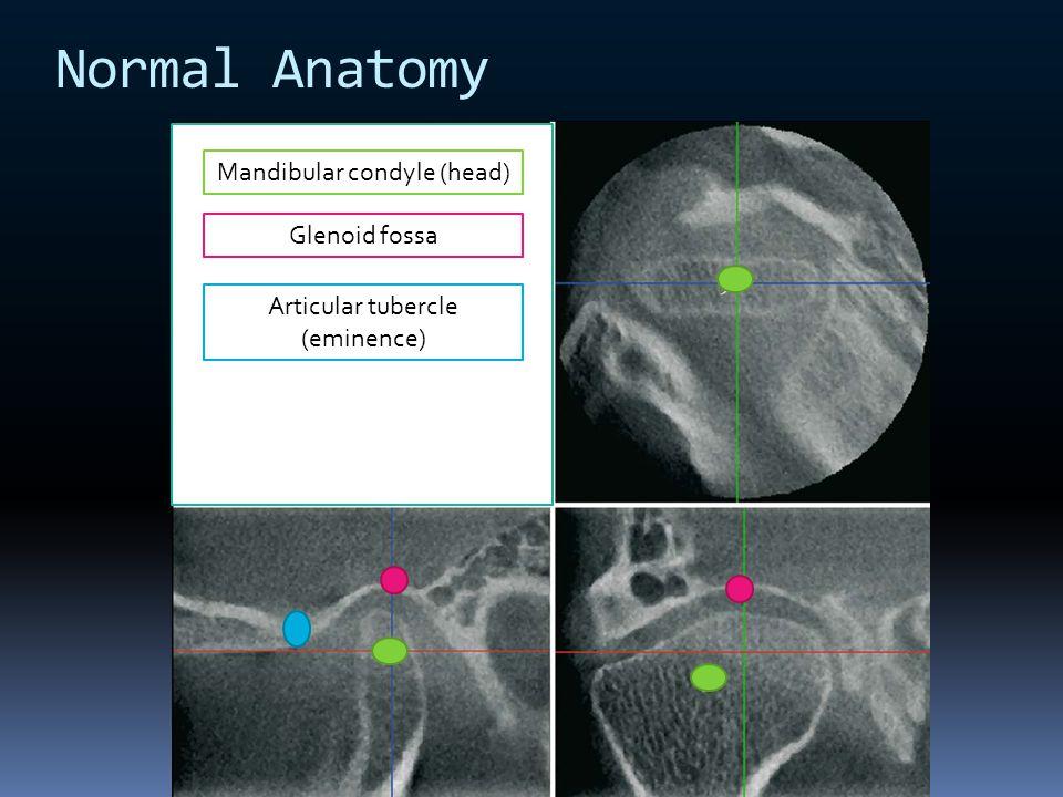 Normal Anatomy Mandibular condyle (head) Glenoid fossa