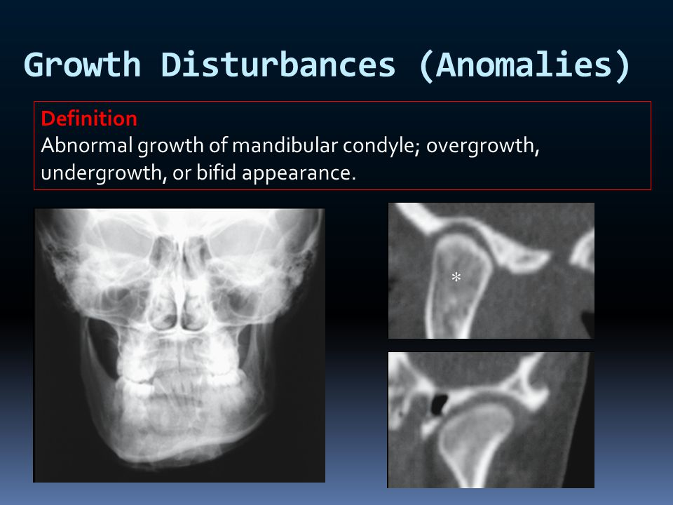 Growth Disturbances (Anomalies)
